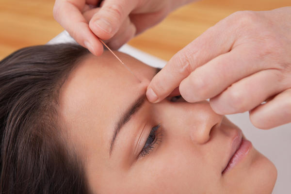 Can you tell me if I could make an appointment for acupuncture without a general practitioner's permission?