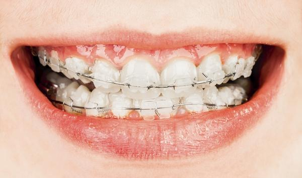 How should I get rid of swollen gums with braces?