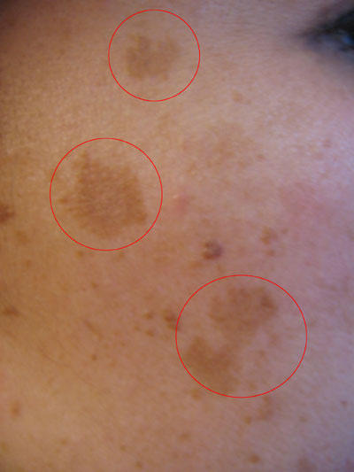What causes melasma? My friend randomly developed a spot on her face that she says is called melasma.  What causes this?