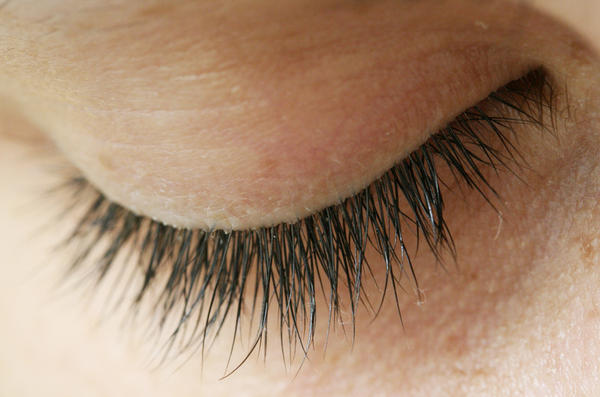 Can castor oil cure a pterygium on your eye?