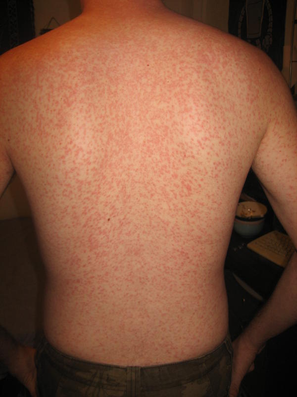 Burning red rash rapidly spreading over whole body started on inner thighs?