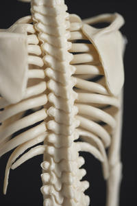 Can an X-ray determine if ribs were broken by squeezing. ?