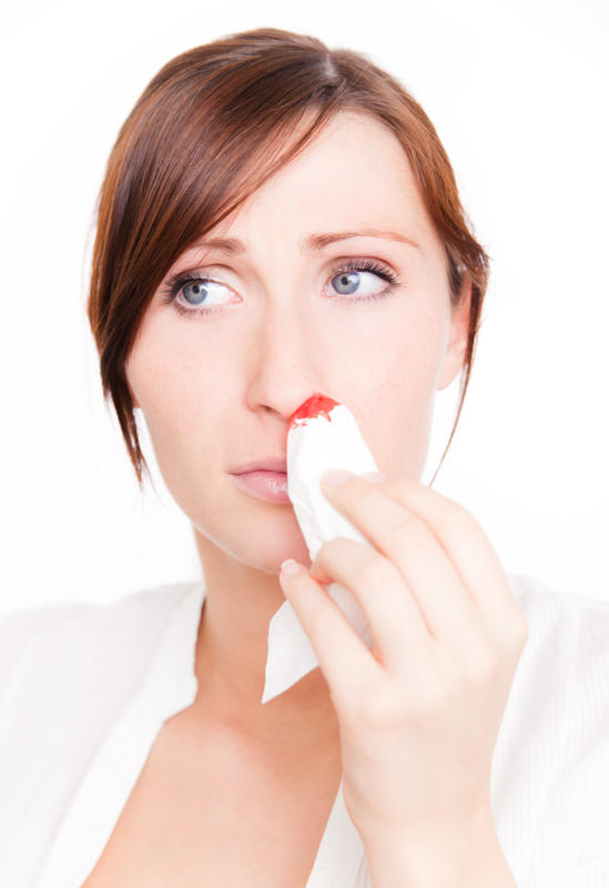 How long does mucosal irritation associated with nosebleeds last?
