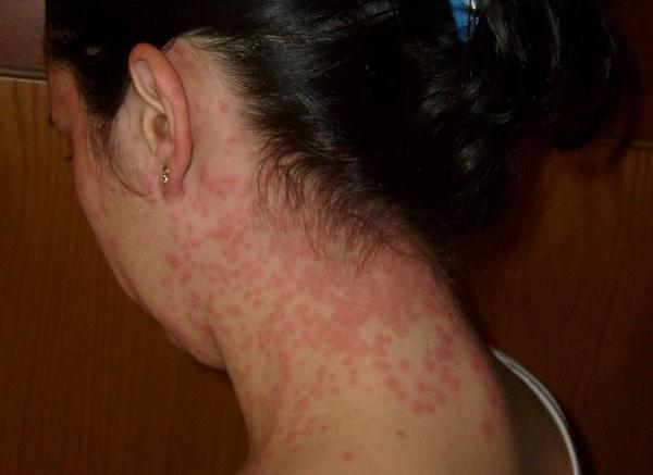 I have an itchy rash that appears only on my elbows. It appears as red dots or sometimes pus filled spots. I notice outbreaks mainly in the summer.