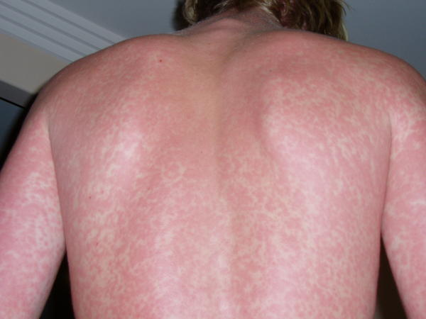How should I relieve the slightly itchy rash on chest stomach and back?