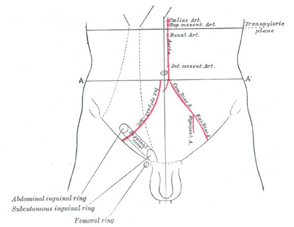 What is the definition or description of: inguinal hernia?