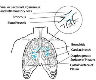 Can doctors usually tell if a person has bacterial bronchitis without an x-ray?