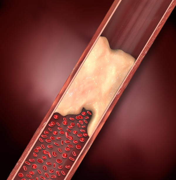 What are the symptoms of a deep venous thrombosis?