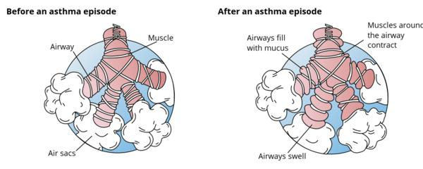 Any difference between asthma and bronchospasm?