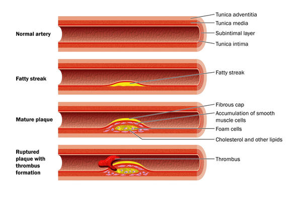How does plaque form in the arteries?