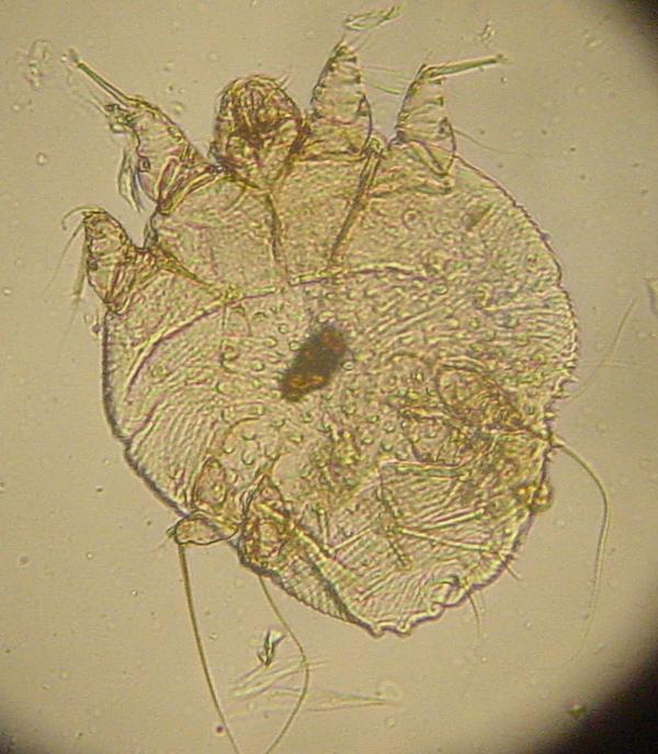 How does the body get rid of the dead mites from scabies?
