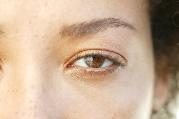 "Is pink eye considered a ""pink eye"" when no itching or pain?"