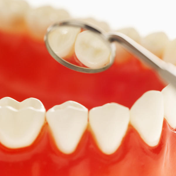 Will peroxide help any with gum disease?