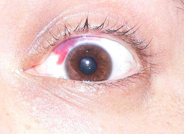 Contacts okay with burst blood vessel?