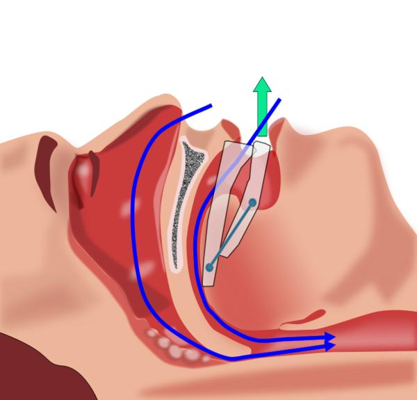 What is the treatment for obstructive sleep apnea?