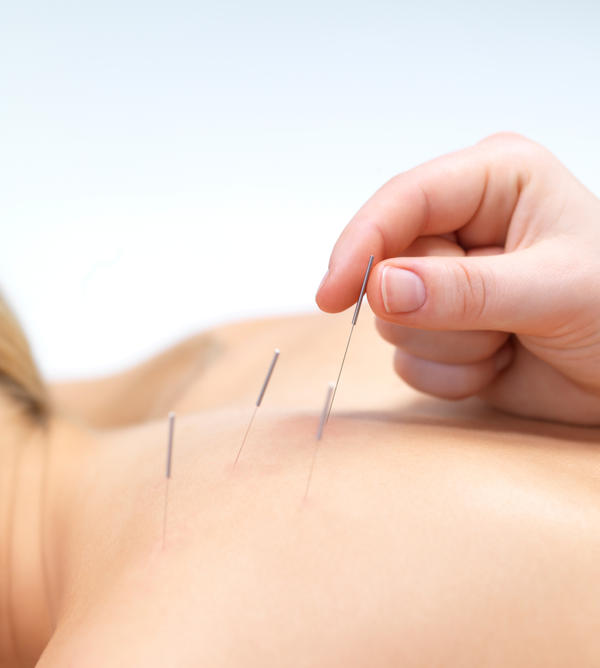 Could acupuncture provide relief for sinus and ear pain that has not been helped by meds?