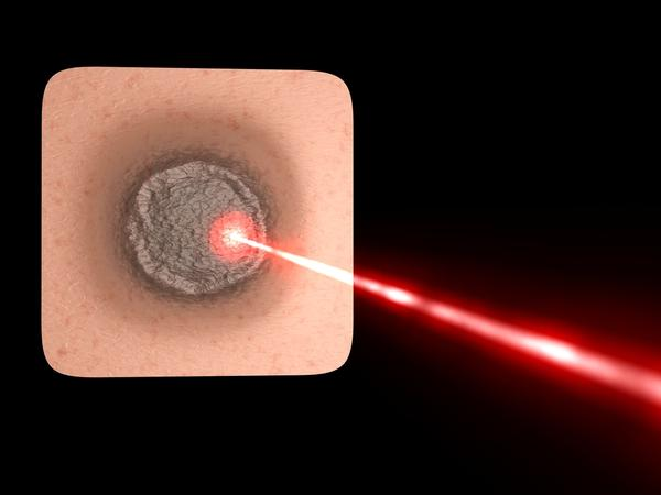 What can you tell me about endovenous laser ablation procedure?