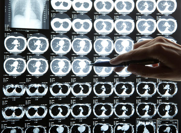 Ct scan, mri, nuclear medicine imaging, ivp scan, how are they different?
