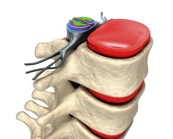 How serious is a having a herniated disk?