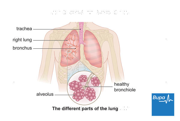 After chest X-ray diagnosed acute bronchitis ant+inhaler given 3 days still out of breath, fever, normal? Pneumonia? No smoker or asthma.