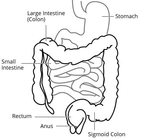 What can cause a delay from small bowel transit into the colon?