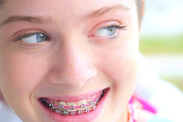 Can a girl with braces have oral sex?