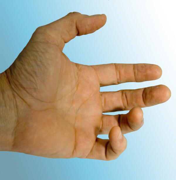 What are the symptoms of dupuytren's contracture?