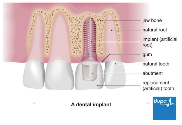 How fast does the tooth implant procedure take to finish?