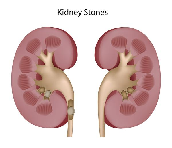 What originally started as right side pain and tenderness seemed to turn into whole lower back pain below hips. Was given an taragol. Kidney stones??