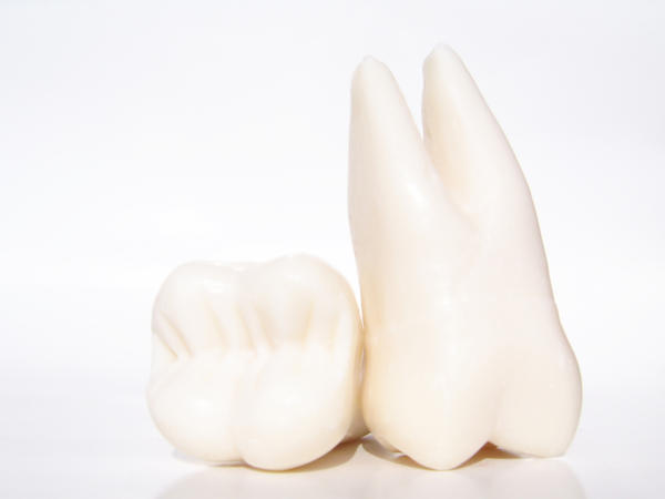 Will impacted wisdom teeth cause swollen glands/lymph nodes?