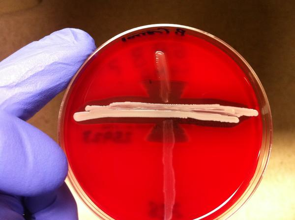 Normally, how long would the strep bacteria live on surfaces?