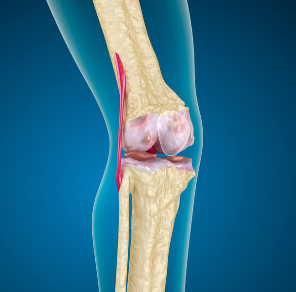 There appears to be mild medial joint space loss bilaterally. What does this mean?
