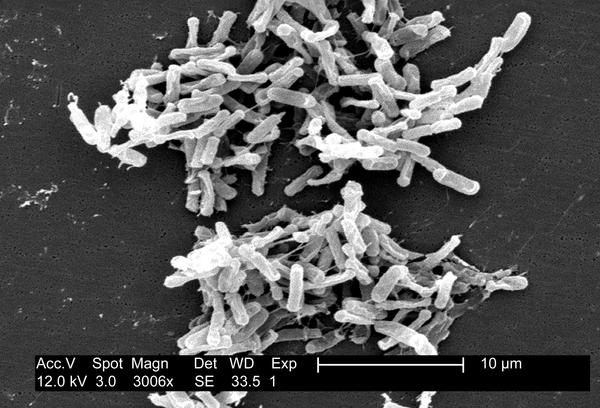 How many spores of clostridium difficile do you have to eat to get an infection?