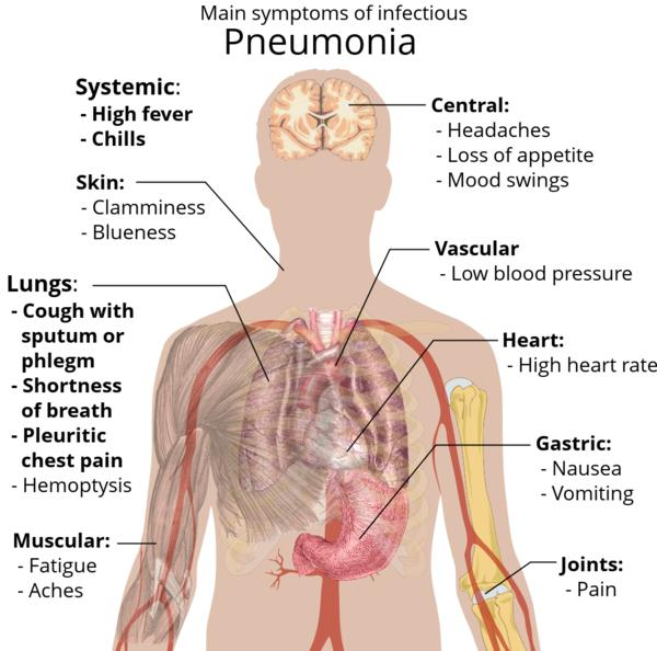 Are coughing up blood, night sweats and vomiting signs of pneumonia?