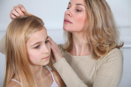 Can head lice cause hives on a 5 year old girl?