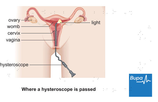 How are uterine polyps treated in a woman?