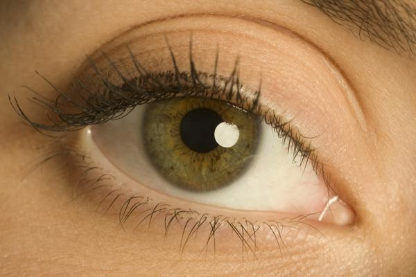 My irises are naturally dark brown (I'm Asian), but their circumference are both dark blue. Is that normal?