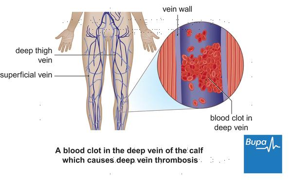 What is a nursing diagnosis related to deep vein thrombosis?