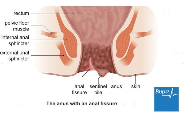 What is the distinction between anal fissure/fistula and hemorrhoid?