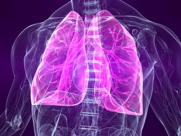 Do people with bronchiectasis constantly get lung infections?