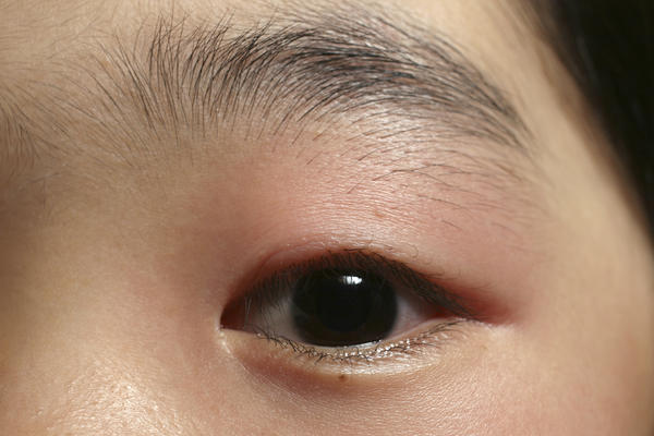 Was rubbing my eyelid lightly due to tiredness and fellt a pop now my lower eyelid red and swollen and sore to the touch?