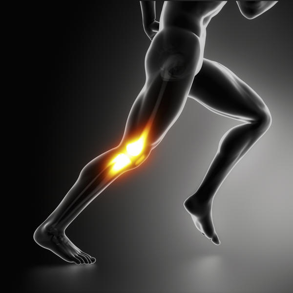 Might going to physical therapy cure my runner's knee?