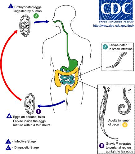 Will a colon cleanse laxative get rid of any pinworms?