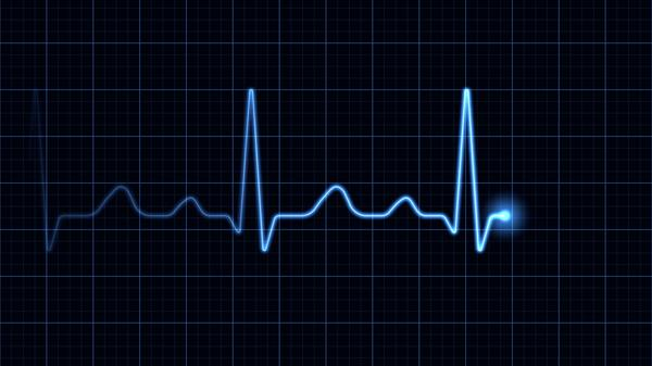 What does low voltage mean on an ekg?