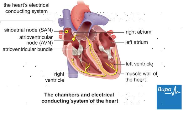Can right atrial enlargement lead to a heart arrhythmia?
