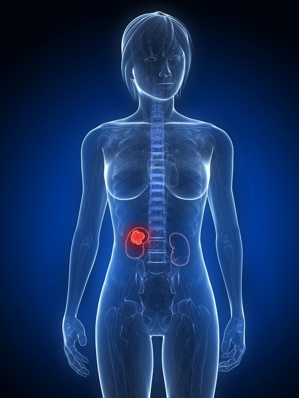 How frequently does a bad gallbladder come back with tests saying it is fine?