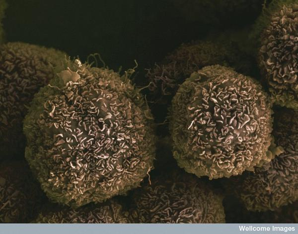 Can herbal supplements help to treat cancer?