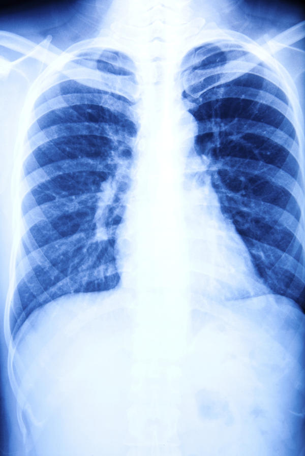 Is lung damage during breast radiation permanent?