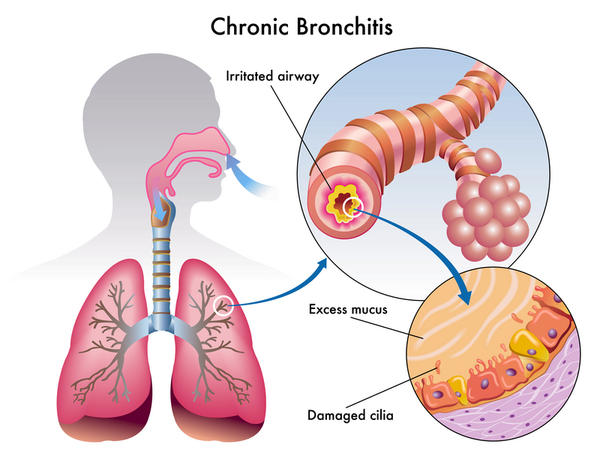 Is coughing up blood normal for a patient with chronic bronchitis?