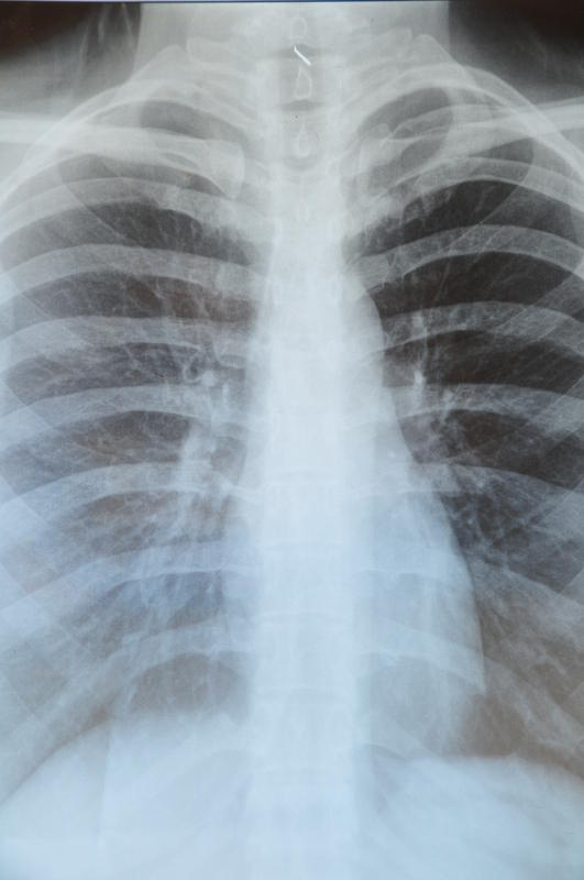 Would a lung X-ray show if someone had emphysema?